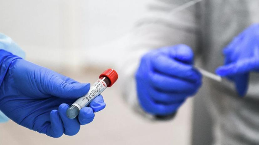 В Узбекистане число случаев коронавируса превысило 63 тысячи
