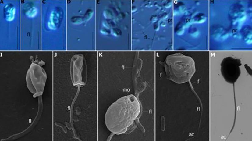 Хищный жгутиконосец: биологи обнаружили возможного предка всех животных
