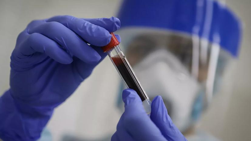 У главы правительства Иркутской области выявили коронавирус