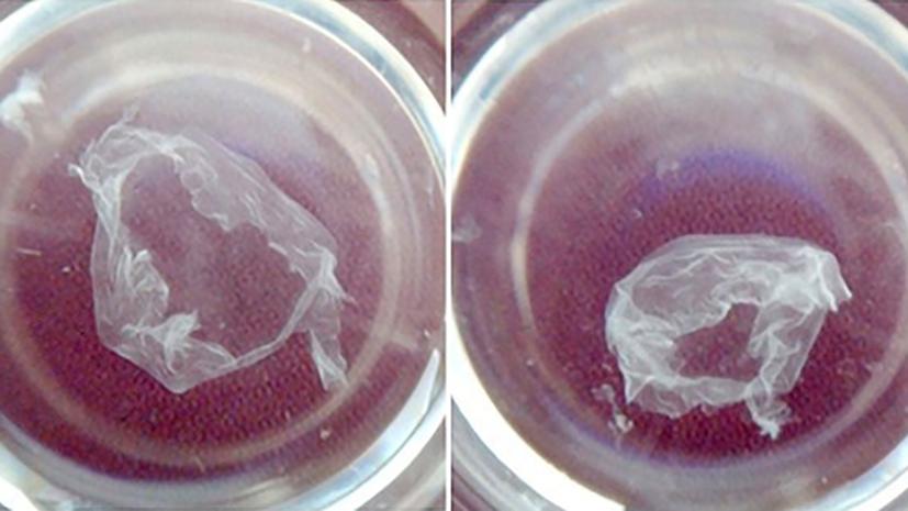 Внеклеточный каркас: российские учёные получили биоматериал для восстановления тканей организма