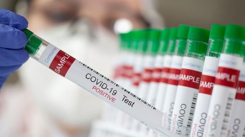 Число случаев коронавируса в Колумбии достигло 2 841 934
