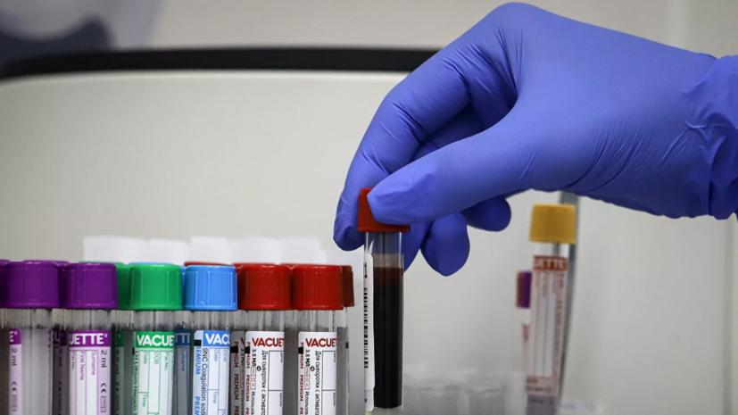 В Узбекистане за сутки выявили 251 случай коронавируса