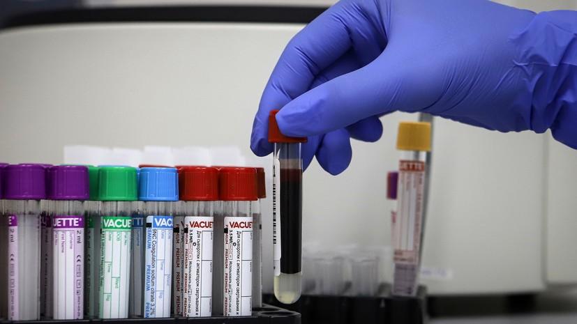 В Петербурге за сутки выявили 863 случая коронавируса