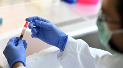В Кировской области зарегистрировали 115 случаев коронавируса за сутки