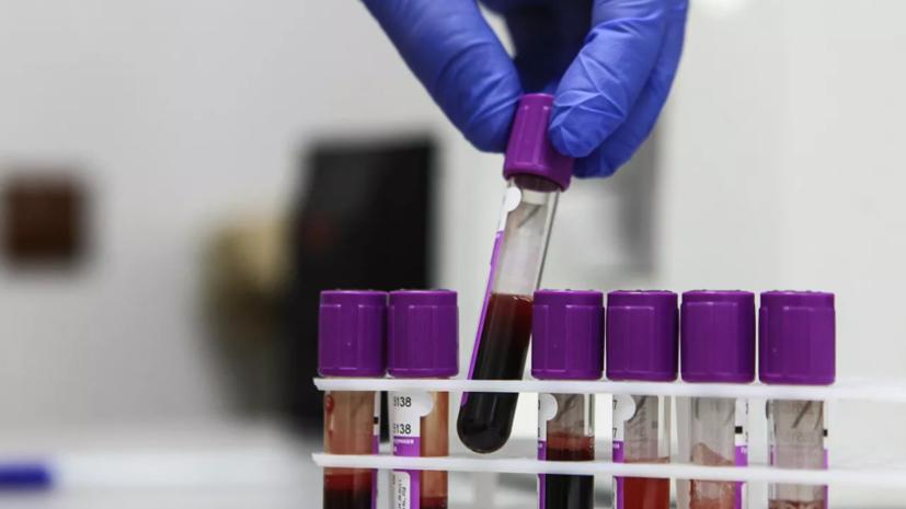 В России за сутки проведено почти 400 тысяч тестов на коронавирус