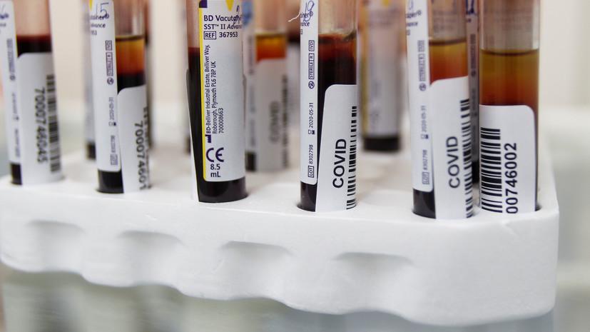 В Оренбургской области подтвердили 350 случаев COVID-19 за сутки