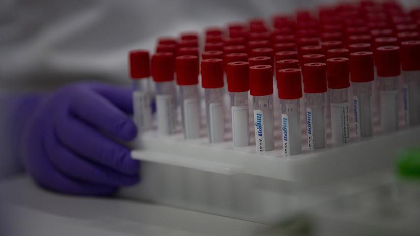В Псковской области зарегистрировали 237 случаев коронавируса за сутки