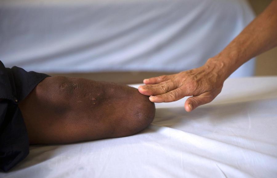 Китаец, не имея денег на операцию, сам ампутировал себе ногу