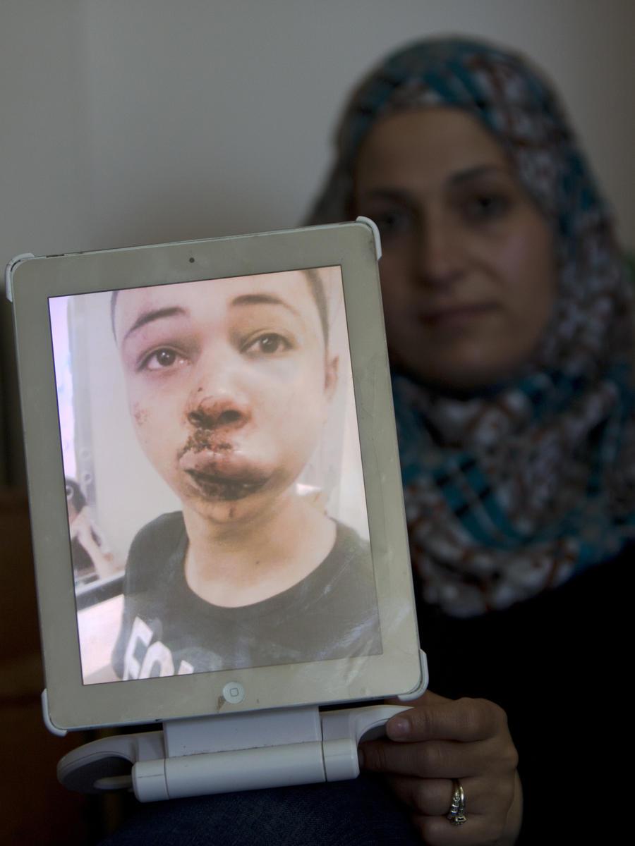 Израильские полицейские жестоко избили двоюродного брата палестинского подростка, убитого радикалами