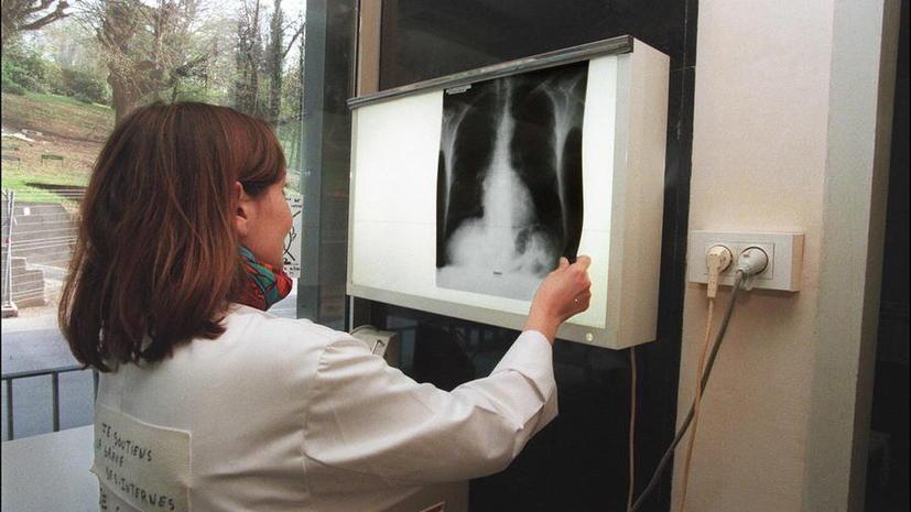 Учёные впервые вырастили в лаборатории человеческие лёгкие