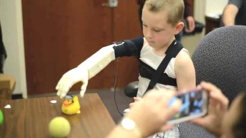 Инженеры вернули ребёнку руку с помощью 3D-принтера и деталей стоимостью $350