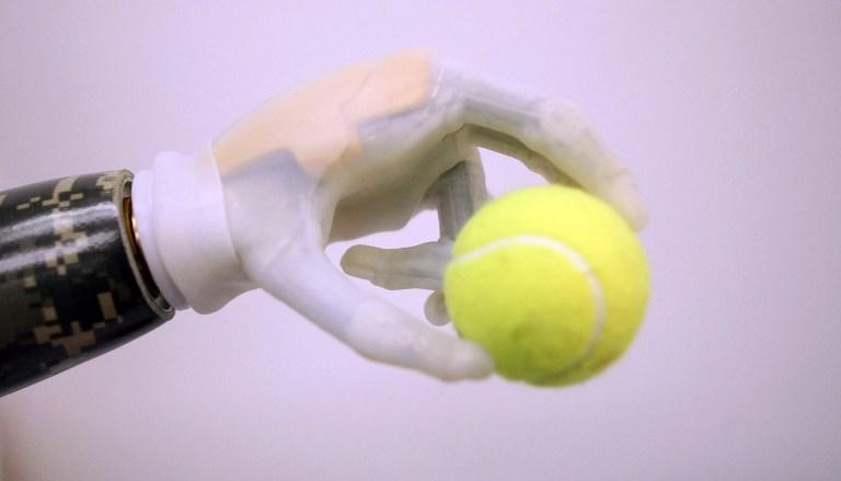Новой бионической рукой можно управлять при помощи смартфона
