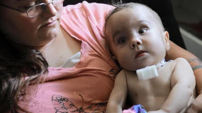 3D-принтер спас  жизнь ребёнку: врачи распечатали пылесос для лёгких