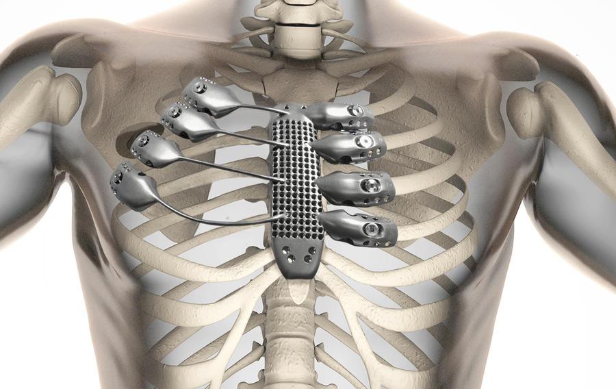 В Испании провели первую в мире операцию по пересадке рёбер, напечатанных на 3D-принтере