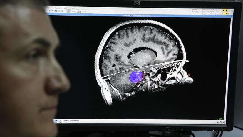 Сибирские учёные создали искусственный самообучаемый мозг