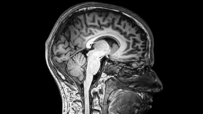 Интерактивная карта человеческого мозга изменит подход к использованию антидепрессантов