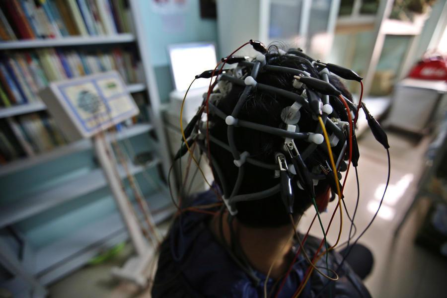 Учёные: Стимуляция активности головного мозга электричеством помогает выйти из депрессии