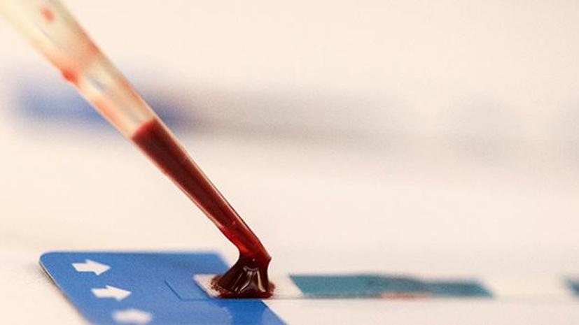 Впервые путём клонирования получено антитело, подавляющее ВИЧ в крови пациента